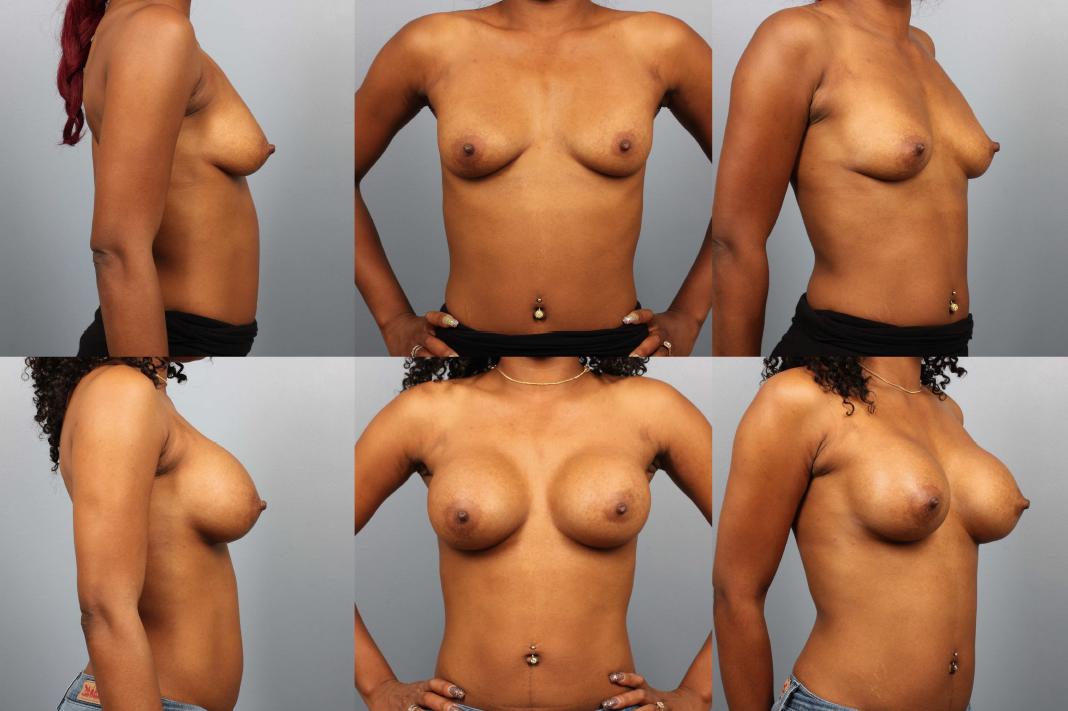 Mature women breast implants