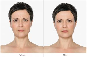 Cheek Lift, Brow Lift & Blepharoplasty Before & After Photos