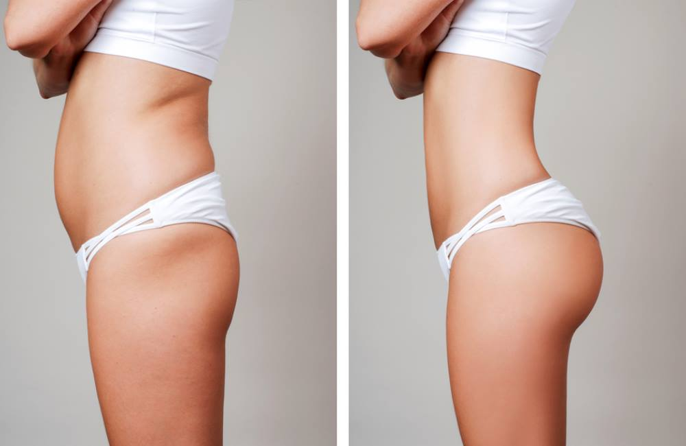 Where Can You Get Liposuction? | Top Lipo Areas
